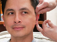 Auricular (Ear) Acupuncture